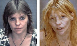 Female Meth User4