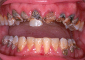 dental issues from meth use